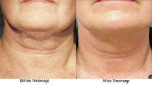 Thermage BA 640x363 1