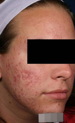 acne1 after 4d6c0f85eda45787a0d1dfe2714ae333
