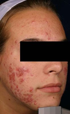 acne1 before fb11d56716632a4a969304403fa045c6 1