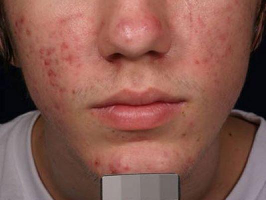 acne2 after ce143697d789b27b9c41cfde70e3c52c 1