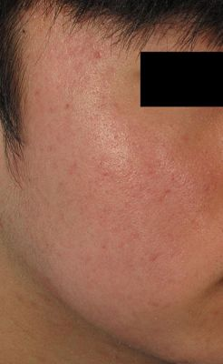 acne6 after 4c074d6cce5a4bc00794412a7b6dbed6 1
