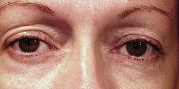 blepharoplasty1 before df3525638ffb05d8cb61d1f2ee7bfadb