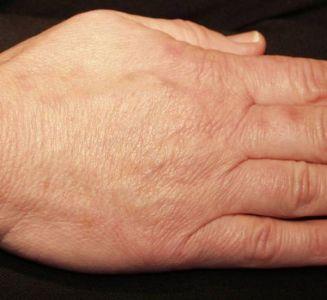 hand rejuvenation1 after 53f5e07a8741c5d79aef96f1987c7752