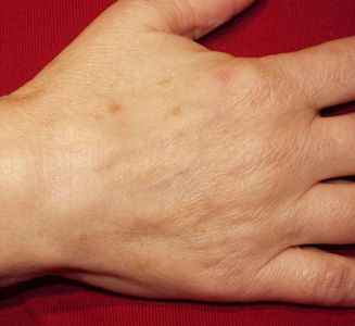 hand rejuvenation1 before efe1c0dc5d581fcd71b8757d07e5b404