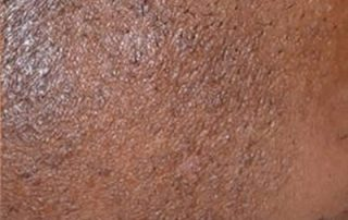 laser hair removal2 after
