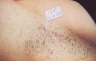 laser hair removal3 before
