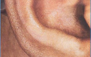 laser hair removal5 after