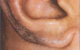 laser hair removal5 before