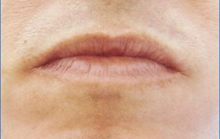 laser hair removal6 after