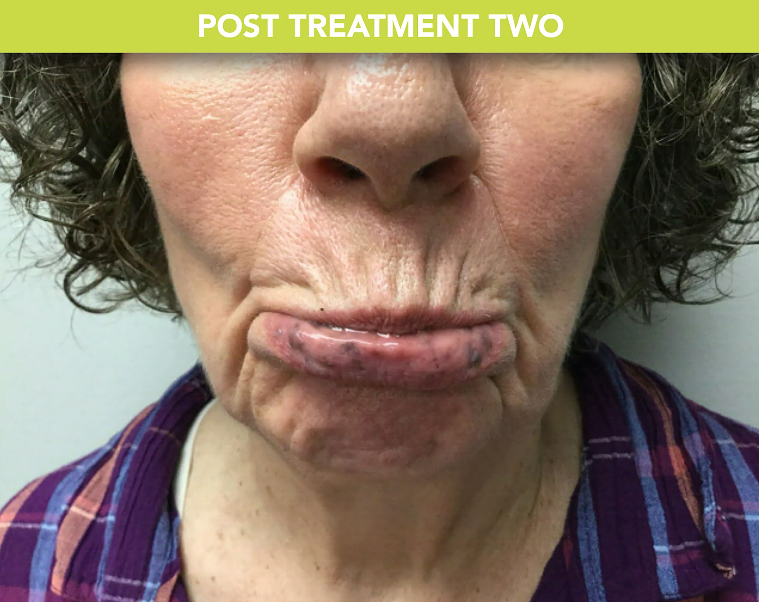 post treatment two2 52442f72a0c63a186924fdafa296858c