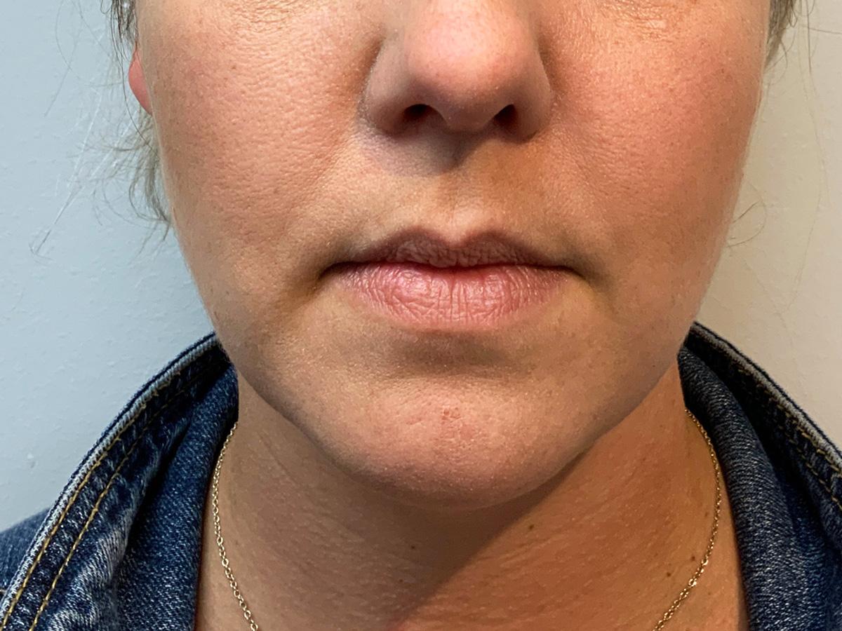 LIp filler treatment - before
