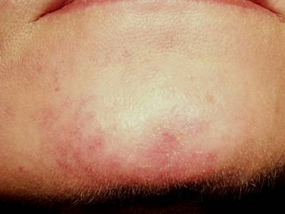 laser treatment of telangiectasias redness rosacea1 after