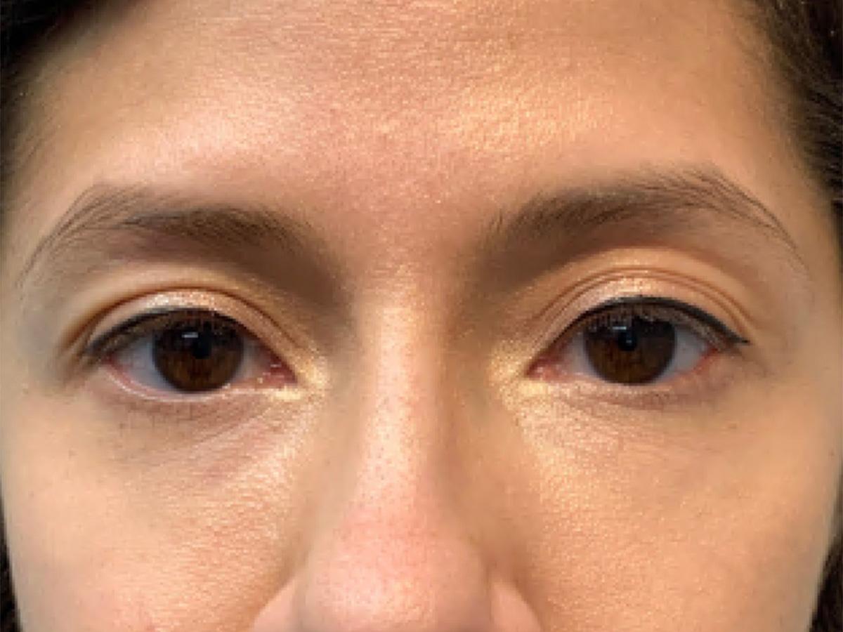 under eye filler after