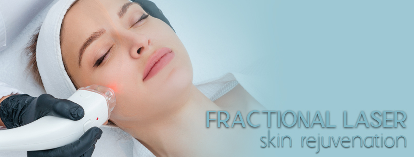 fractional laser blogs header